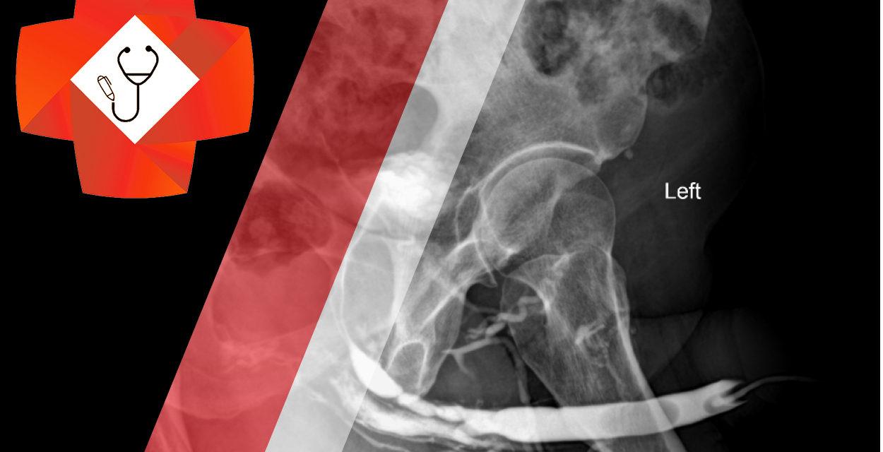 Retrograde Urethrogram