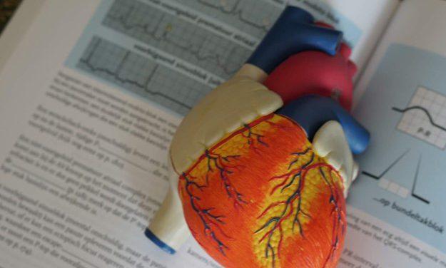 Electrocardiograph (ECG) interpretation